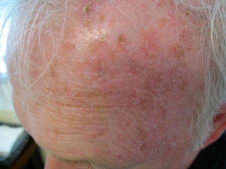 Skin Cancer – Gaughf Dermatology