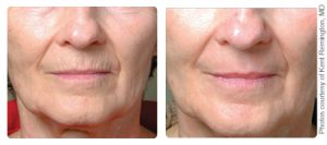 Profractional and Microlaser peel