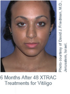 XTRAC-laser-after