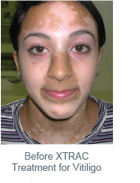 EXTRAC-laser-before